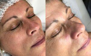 limpeza de pele antes e depois